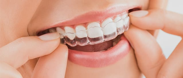 Invisalign, Toothworks Dental Clinics